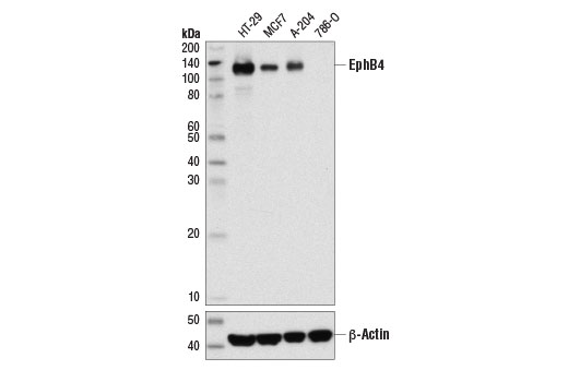 Western blot analysis of extracts from various cell lines using EphB4 (D1C7N) Rabbit mAb (upper) and β-Actin (D6A8) #8457 (lower).