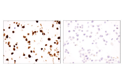 Immunohistochemical analysis of paraffin-embedded NTERA-2 cl.D1 (left) and HeLa (right) cell pellets using Sox2 (D1C7J) XP<sup>®</sup> Rabbit mAb.