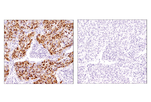 Immunohistochemical analysis of paraffin-embedded human lung carcinoma using Sox2 (D1C7J) XP<sup>®</sup> Rabbit mAb in the presence of control peptide (left) and antigen-specific peptide (right).
