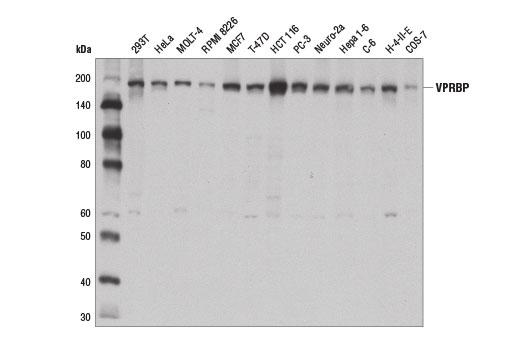 Monoclonal Antibody - VPRBP (D5K5V) Rabbit mAb - Western Blotting, UniProt ID Q9Y4B6, Entrez ID 9730 #14966 - #14966