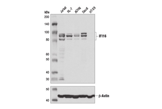 Western blot analysis of extracts from various cell lines using IFI16 (D8B5T) Rabbit mAb (upper) and β-Actin (D6A8) Rabbit mAb #8547 (lower).