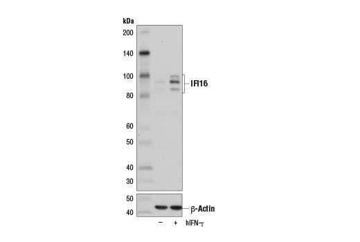 Western blot analysis of extracts from HeLa cells, untreated (-) or treated with Human Interferon-γ (hIFN-γ) #8901 (50 ng/ml, 16 hr; +), using IFI16 (D8B5T) Rabbit mAb (upper) and β-Actin (D6A8) Rabbit mAb #8547 (lower).