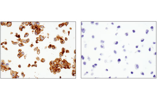 Immunohistochemical analysis of paraffin-embedded ACHN (left) and HeLa (right) cell pellets using TIM-1 (E1R9N) Rabbit mAb.