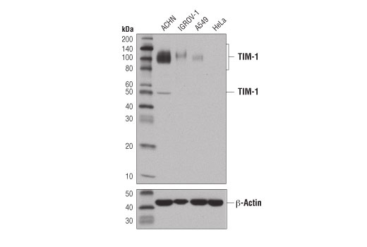 Western blot analysis of extracts from various cell lines using TIM-1 (E1R9N) Rabbit mAb (upper) or β-Actin (D6A8) Rabbit mAb #8457 (lower).