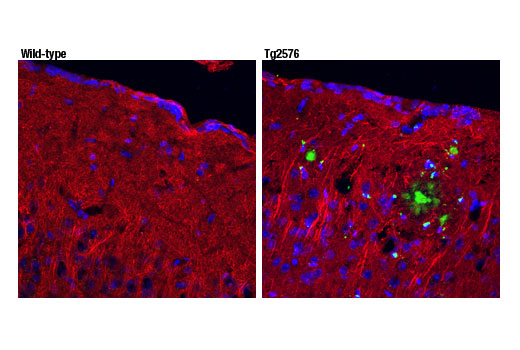 Confocal immunofluorescent analysis of wild-type (left) and Tg2576 mouse model of Alzheimer's brain (right) using β-Amyloid (pE3 Peptide) (D5N5H) Rabbit mAb (green) and β3-Tubulin (TU-20) Mouse mAb #4466 (red). Blue pseudocolor = DRAQ5<sup>®</sup> #4084 (fluorescent DNA dye).