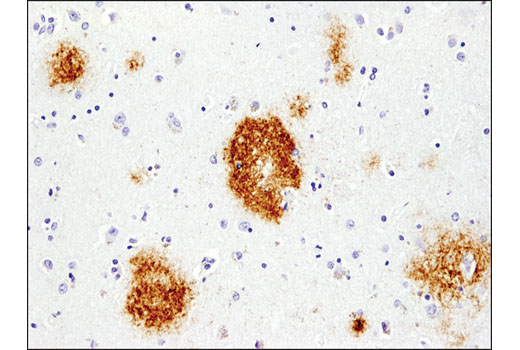 Immunohistochemistry Image 1: β-Amyloid (pE3 Peptide) (D5N5H) Rabbit mAb