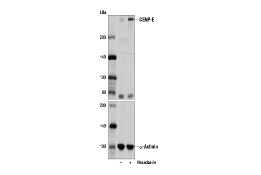 Polyclonal Antibody Outer Kinetochore of Condensed Chromosome