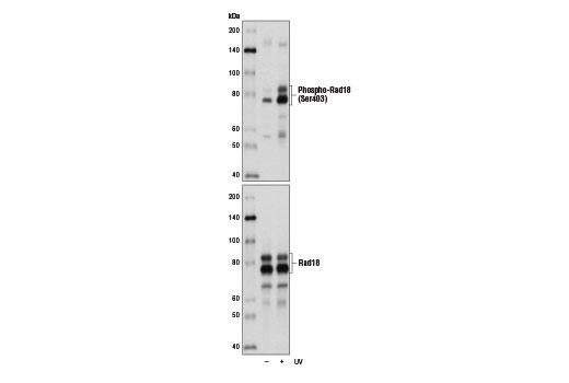 Western blot analysis of extracts from 293 cells, untreated (-) or UV-treated (+), using Phospho-Rad18 (Ser403) (D2T6W) Rabbit mAb (upper) and Rad18 (D2B8) XP<sup>®</sup> Rabbit mAb #9040 (lower).