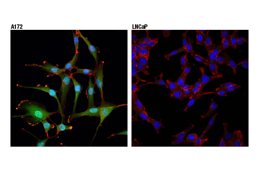 Confocal immunofluorescent analysis of A172 (positive, left) or LNCaP (negative, right) cells using Akt3 (E1Z3W) Rabbit mAb (green). Actin filaments were labeled with DyLight™ 554 Phalloidin #13054 (red). Blue pseudocolor = DRAQ5<sup>®</sup> #4084 (fluorescent DNA dye).