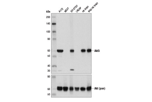 Western blot analysis of extracts from various cell lines and tissues using Akt3 (E1Z3W) Rabbit mAb (upper) and Akt (pan) (C67E7) Rabbit mAb #4691 (lower).