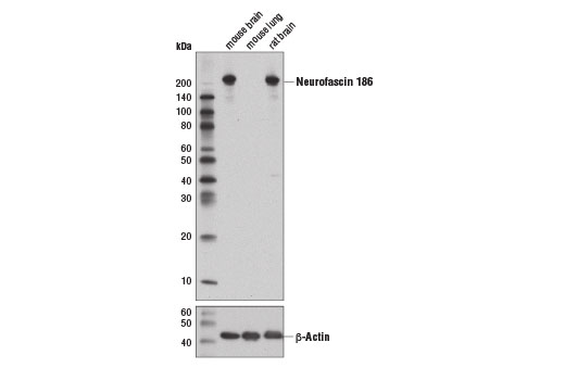 Western blot analysis of extracts from mouse brain, mouse lung, and rat brain using Neurofascin 186 (D6G6O) Rabbit mAb (upper) and β-Actin (D6A8) Rabbit mAb #8457 (lower).