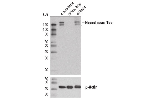 Western blot analysis of extracts from mouse brain, mouse lung, and rat brain using Neurofascin 155 (D7B6O) Rabbit mAb (upper) and β-Actin (D6A8) Rabbit mAb #8457 (lower).