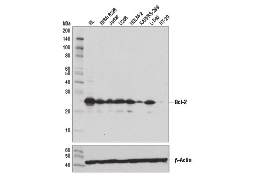 Western blot analysis of extracts from various cell lines using Bcl-2 (124) Mouse mAb (upper) and β-Actin (D6A8) Rabbit mAb #8457 (lower). KARPAS cell Line source: Dr Abraham Karpas at the University of Cambridge.