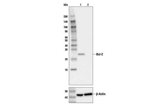 Western blot analysis of HeLa cell extracts, untreated (-) or Bcl-2 knock-out (+), using Bcl-2 (124) Mouse mAb #15071 (upper), or β-actin (13E5) Rabbit mAb #4970 (lower).