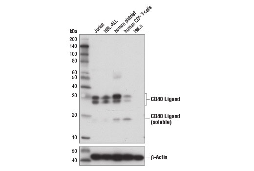 Western blot analysis of extracts from various cell lines and tissues using CD40 Ligand (D5J9Y) Rabbit mAb (upper) and β-Actin (D6A8) Rabbit mAb #8457 (lower).