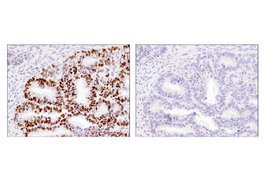 Monoclonal Antibody - Aiolos (D1C1E) Rabbit mAb, UniProt ID Q9UKT9, Entrez ID 22806 #15103, Chip-Seq