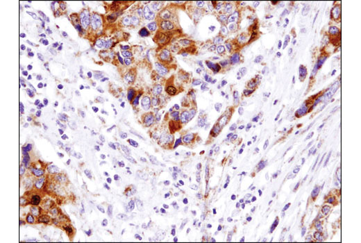 Immunohistochemical analysis of paraffin-embedded colon carcinoma using Smac/Diablo (D5S3R) Rabbit mAb.