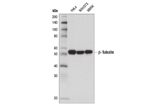 Western blot analysis of extracts from HeLa, NIH/3T3, and KNRK cells using β-Tubulin (D2N5G) Rabbit mAb.