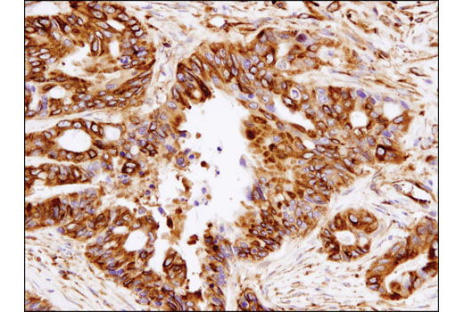 Immunohistochemical analysis of paraffin-embedded human colon carcinoma using β-Tubulin (D2N5G) Rabbit mAb.