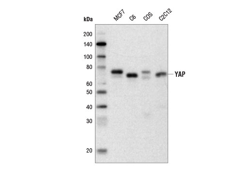 Western blot analysis of extracts from various cell lines using YAP (D8H1X) XP<sup>®</sup> Rabbit mAb (Biotinylated). Streptavidin-HRP #3999 was used for detection.