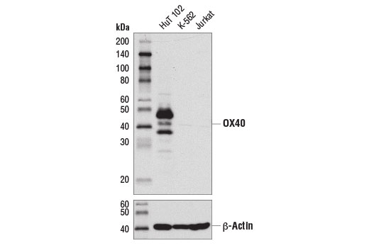 Western blot analysis of extracts from HuT 102, K-562, and Jurkat cells using OX40 (D1S6L) Rabbit mAb (upper) and β-Actin (D6A8) Rabbit mAb #8457 (lower).