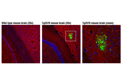 Confocal immunofluorescent analysis of brain sections from 13-month old wild-type (left) and Tg2576 (center) mice using β-Amyloid (D3D2N) Mouse mAb (green) and β3-Tubulin (D71G9) XP<sup>®</sup> Rabbit mAb #5568 (red). A detailed view of a cortical β-amyloid plaque is shown on the right. Blue pseudocolor = DRAQ5<sup>®</sup> #4084 (fluorescent DNA dye).