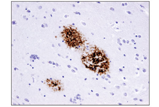 Immunohistochemical analysis of paraffin-embedded human Alzheimer's brain using β-Amyloid (D3D2N) Mouse mAb.