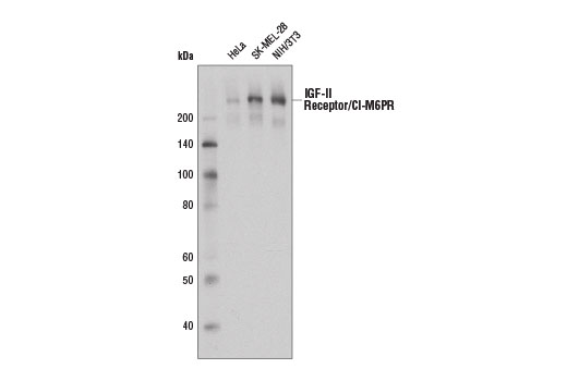 Western blot analysis of extracts from HeLa, SK-MEL-28, and NIH/3T3 cells using IGF-II Receptor/CI-M6PR (D8Z3J) Rabbit mAb.