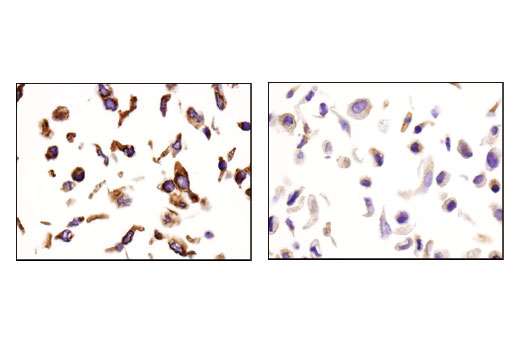 Immunohistochemical analysis of paraffin-embedded SK-OV-3 (left) and A549 (right) cell pellets using IGF-II Receptor/CI-M6PR (D8Z3J) Rabbit mAb.