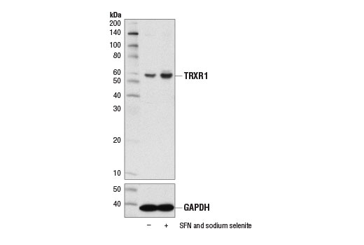 Western blot analysis of Caco-2 cells, untreated (-) or treated (+) for 48 hr with R-sulforaphane (SFN; 10 μM) and sodium selenite (100 nM), using TRXR1 (D1T3D) Rabbit mAb (upper) and GAPDH (D16H11) XP<sup>®</sup> Rabbit mAb #5174 (lower).