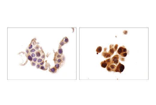 Immunohistochemical analysis of paraffin-embedded Caco-2 cells, untreated (left) and R-sulforaphane (SFN) and sodium selenite-treated (right), using TRXR1 (D1T3D) Rabbit mAb.