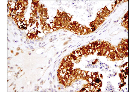 Immunohistochemical analysis of paraffin-embedded human ovarian carcinoma using TRXR1 (D1T3D) Rabbit mAb.
