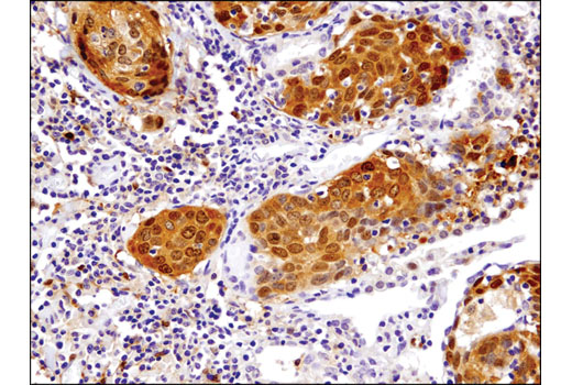 Immunohistochemical analysis of paraffin-embedded human lung carcinoma using TRXR1 (D1T3D) Rabbit mAb.