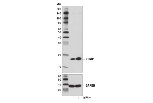 Western blot analysis of extracts from RKO cells, untreated (-) or treated with Human Interferon-γ (hIFN-γ) #8901 (100 ng/ml, 72 hr; +), using POMP (D2X9S) Rabbit mAb (upper) and GAPDH (D16H11) XP<sup>®</sup> Rabbit mAb #5174 (lower). Interferon-γ induces increased POMP protein expression in RKO cells.