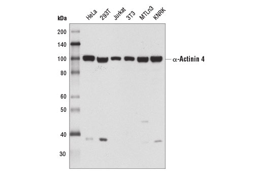 Western blot analysis of extracts from various cell lines using α-Actinin 4 (D7U5A) Rabbit mAb.