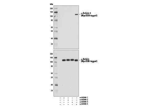Western blot analysis of extracts from 293T cells, mock transfected (-) or transfected with constructs expressing Myc/DDK-tagged full-length human α-actinin proteins (+), using α-Actinin 4 (D7U5A) Rabbit mAb (upper) and Myc-Tag (71D10) Rabbit mAb #2278 (lower).
