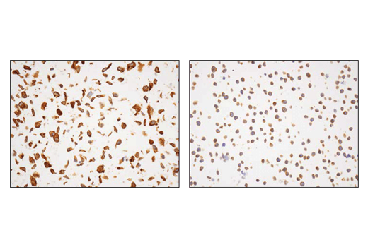 Immunohistochemical analysis of paraffin-embedded A549 cell pellet (left, high-expressing) or MOLT-4 cell pellet (right, low-expressing) using using α-Actinin 4 (D7U5A) Rabbit mAb.