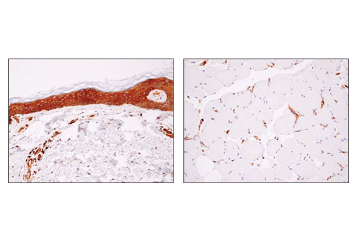 Immunohistochemical analysis of paraffin-embedded human skin (left) or skeletal muscle (right) using using α-Actinin 4 (D7U5A) Rabbit mAb. Note the lack of staining in skeletal myocytes.