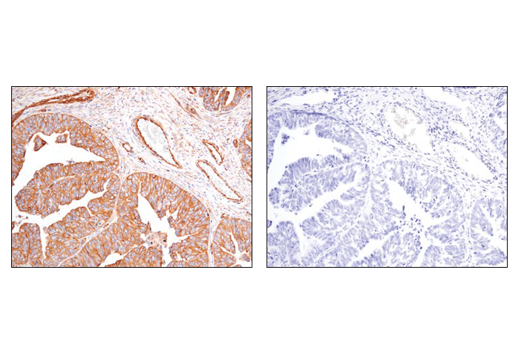 Immunohistochemical analysis of paraffin-embedded human serous papillary carcinoma of the ovary using α-Actinin 4 (D7U5A) Rabbit mAb (left) compared to concentration matched Rabbit (DA1E) mAb IgG XP® Isotype Control #3900 (right).