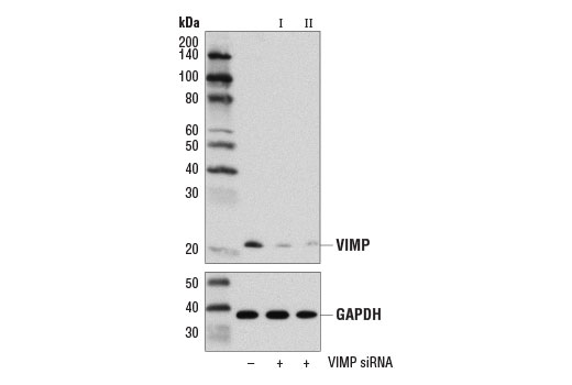 Western blot analysis of extracts from 293T cells transfected with 100 nM SignalSilence<sup>®</sup> Control siRNA (Unconjugated) #6568 (-), SignalSilence<sup>®</sup> VIMP siRNA I #13803 (+), or SignalSilence<sup>®</sup> VIMP siRNA II (+) #13818, using VIMP (D1D1M) Rabbit mAb (upper) and GAPDH (D16H11) XP<sup>®</sup> Rabbit mAb #5174 (lower). The VIMP (D1D1M) Rabbit mAb confirms silencing of VIMP expression, while GAPDH (D16H11) XP<sup>®</sup> Rabbit mAb is used as a loading control.