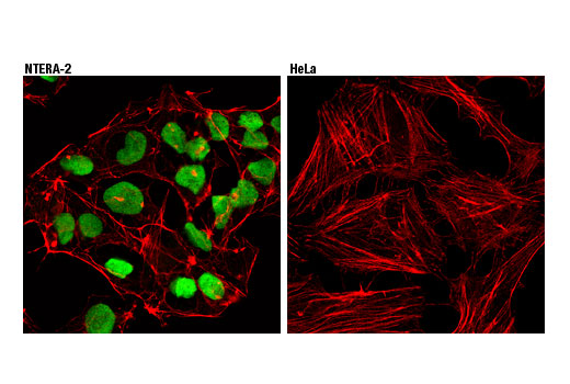 Confocal immunofluorescent analysis of NTERA-2 (left) and HeLa (right) cells using Oct-4 (D7O5Z) Mouse mAb (green). Actin filaments were labeled with DyLight™ 554 Phalloidin #13054 (red). As expected, HeLa cells are negative for Oct-4 expression.