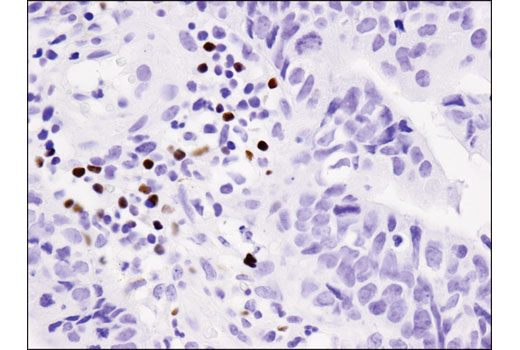 Immunohistochemical analysis of paraffin-embedded human colon carcinoma using FoxP3 (D2W8E™) Rabbit mAb (IHC Specific).
