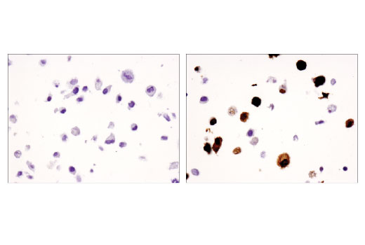 Immunohistochemical analysis of paraffin-embedded COS-7 cell pellets, untransfected (left) or transfected with human FoxP3 protein (right), using FoxP3 (D2W8E™) Rabbit mAb (IHC Specific).