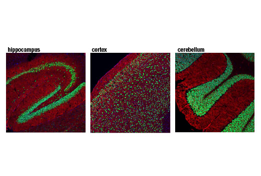 Confocal immunofluorescent analysis of mouse hippocampus (left), cortex (middle), and cerebellum (right) using NeuN (D4G4O) XP<sup>®</sup> Rabbit mAb (green). Actin filaments were labeled with DyLight™ 554 Phalloidin #13054 (red). Blue pseudocolor = DRAQ5<sup>®</sup> #4084 (fluorescent DNA dye).