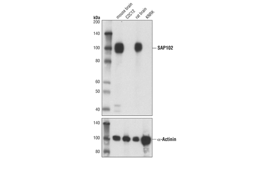 Western blot analysis of extracts from mouse brain, C2C12 cells, rat brain, and KNRK cells using SAP102 (A7R8L) Rabbit mAb (upper) or α-Actinin (D6F6) XP<sup>®</sup> Rabbit mAb #6487 (lower).