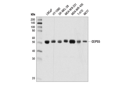Western blot analysis of extracts from various cell lines using CEP55 (D1L4H) Rabbit mAb.