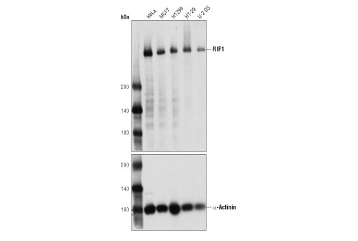 Monoclonal Antibody - RIF1 (D2F2M) Rabbit mAb, UniProt ID Q5UIP0, Entrez ID 55183 #95558, Cell Cycle / Checkpoint Control