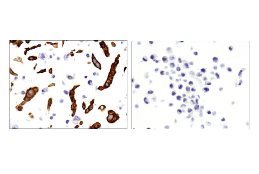 Immunohistochemical analysis of paraffin embedded BxPC-3 (left) and HeLa (right) cell pellets using TRIM29/ATDC (E1L4E) Rabbit mAb.