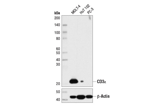 Western blot analysis of extracts from MOLT-4, HuT 102, and PC-3 cells using CD3ε (D7A6E™) XP<sup>®</sup> Rabbit mAb (upper) or β-Actin (D6A8) Rabbit mAb #8457 (lower).