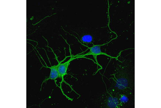 Confocal immunofluorescent analysis of mouse primary neurons using CaMKII-α (6G9) Mouse mAb (green). Blue pseudocolor = DRAQ5<sup>®</sup> #4084 (fluorescent DNA dye).